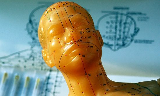How to Find a Good Acupuncturist