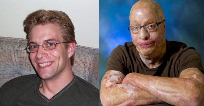 Spencer Beach pictured before and after the 2003 workplace accident that burned 90 percent of his body. (Courtesy Spencer Beach)