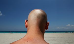 Skin Cancer: Survival Breakthroughs, but Disease on the Rise