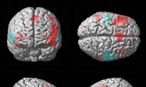 Right-Brain, Left-Brain Just a Myth, Say Neuroscientists