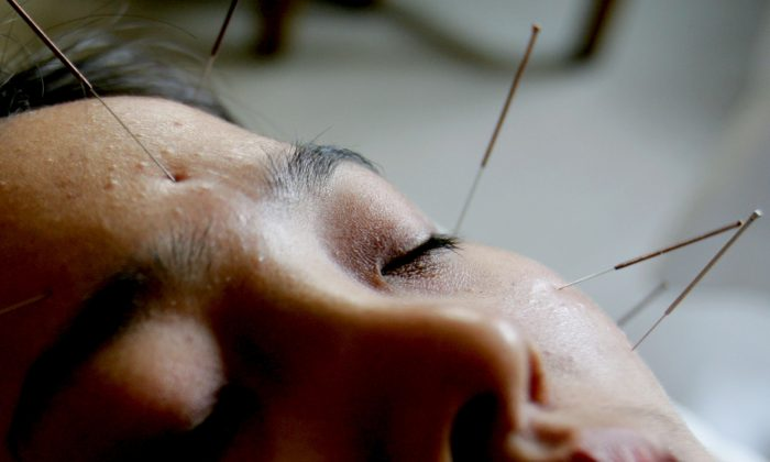 Acupuncture uses small needles to rebalance yin and yang energies. (China Photos/Getty Images)