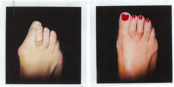 Bunion and hammertoes before and after treatment