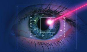 Lowering Risks of Laser Eye Surgery