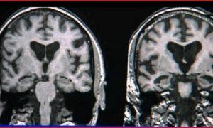 Women at Greater Risk for Alzheimer's (Video)