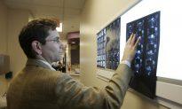 Brain Scans a $1 Billion Headache
