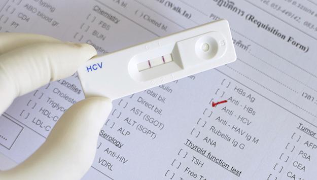 Hepatitis C virus (HCV) positive. (Middle East Institute)