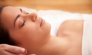 Acupuncture Helps Relieve Headache and Back Pain, Study Shows