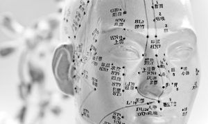 Finding a Qualified Acupuncturist