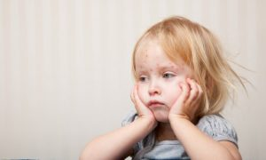 New Drug May Treat Measles Outbreaks