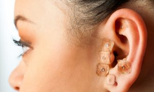 Auricular Acupuncture Weight Loss Found Effective
