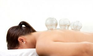 Chinese Medicine Basics; Acupuncture, Cupping, Moxabustion and Herbal Medicine