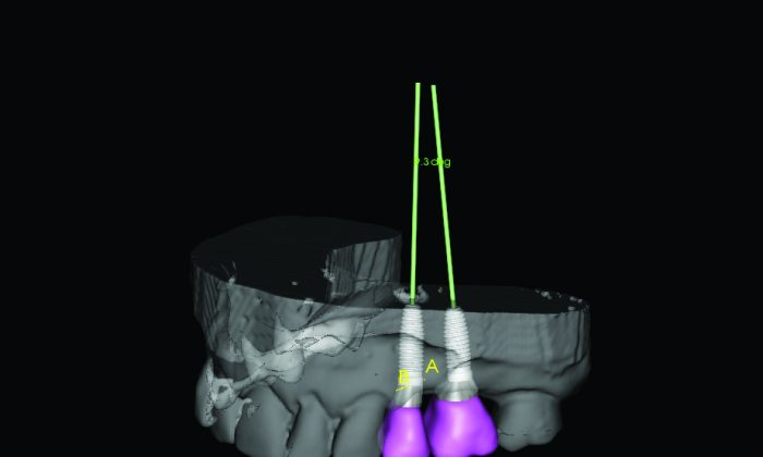 A computer simulation of dental implants using a 3-D scan taken with a 3-D CAT scanner. The scanner allows dentists to see where the bone is dense enough to support an implant. (Instrumentarium Dental/SOREDEX)