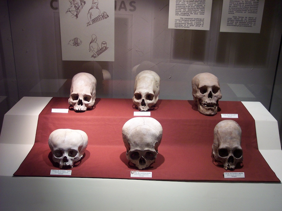 A case of skulls from the Andean Paracas culture, as seen in the National Museum of the Archaeology, Anthropology, and History of Peru. (Wikimedia Commons)
