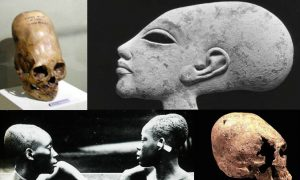 A Look at Theories About Elongated Skulls in Ancient Peru, Europe, Egypt