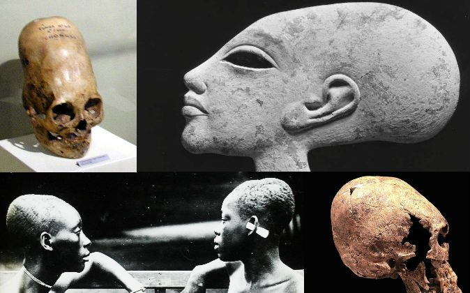 Top left: An elongated skull from Paracas, Peru. Top right: This female head has an elongated skull, and is probably a child of Egyptian Pharaoh Akhenaten (1351–1334 B.C.). Bottom left: Slave girls in the Congo, whose heads have been elongated through binding at a young age, ca. 1900–1915. Bottom right: Elongated skull of a young woman on display at Yverdon History museum. (Wikimedia Commons)