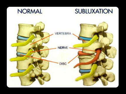 Illustration showing a healthy spine versus a subluxated one. Spinal subluxations can cause a host of problems such as fatigue and stiffness, and even affect one's mood. (Courtesy of Dr. Sabrina Chen-See)