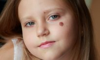 A Theory on How Birthmarks Could Correspond to Wounds From Past Lives