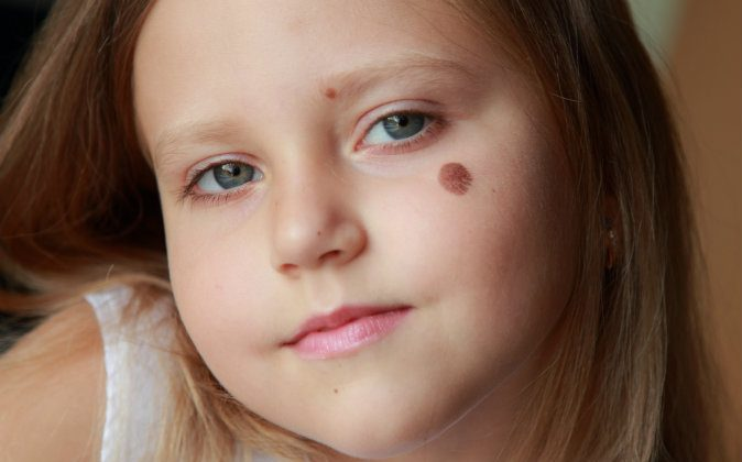 Could birthmarks be left by mental impressions from past lives? (Shutterstock*)