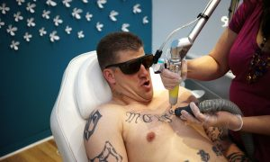 Bad Ink: Tattoo Removal a Burgeoning Industry