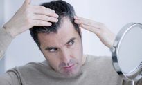 Stop Hair Loss With These Natural Remedies