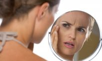 8 Ways to Naturally Prevent Wrinkles (Infographic)