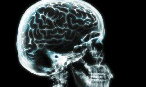 The Neuroscience of Near-Death Experiences