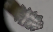 We All Have Mites Living On Our Faces (Video)