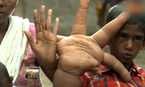 Indian Boy Is Born with 35-Pound Hands (Video)