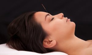 Acupuncture Relieves Migraines