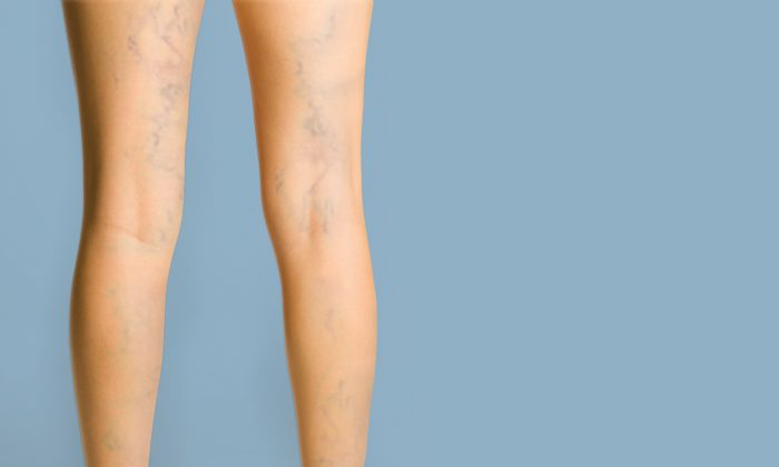 Varicose veins and sometimes spider veins, are a sign of a potentially serious vein condition called venous insufficiency. (DESIGN PICS/Thinkstock)