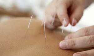 Treating Parkinson's With Acupuncture