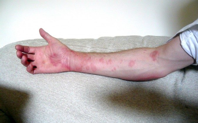 Urticaria (andy carter, CC BY 2.0)