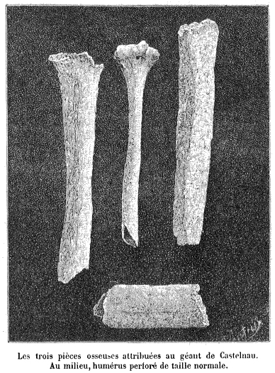 "Three bone fragments of the alleged ""Giant of Castelnau"" found by  Georges Vacher de Lapouge, compared to a regular-sized human humerus (center). (Wikimedia Commons)"