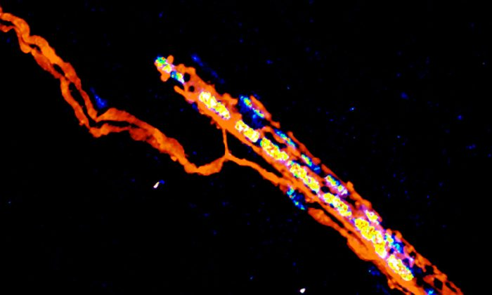 Sensory nerve terminals (orange) of a muscle spindle. University of Basel, Biozentrum)
