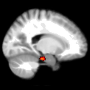 Scientists locate region of brain that helps with sense of direction.(University College London)