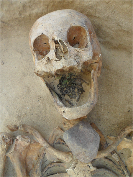 A 45–49 year-old female, with a stone placed on the throat. (Lesley A. Gregoricka et al., CC)