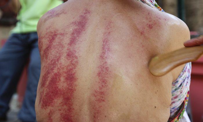 Ancient Technique Scrapes Away Pain