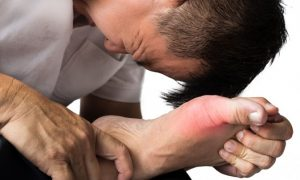 How to Cure Gout Naturally