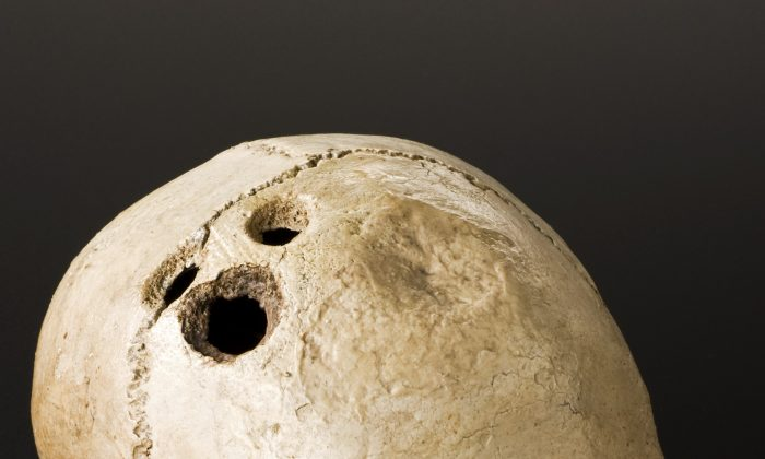 Bronze Age skull from Jericho, Palestine, 2200–2000 B.C. and an early example of trepanation, the oldest form of neurosurgery, which involves drilling into the skull. (Wellcome Images/CC BY 4.0/ Wikimedia Commons)