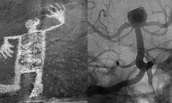 Petroglyph, Utah/Cerebral Aneurysm, Coiled (Caroline Tallmadge)