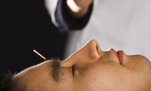 Can Skeptics Ease Their Pain With Acupuncture?