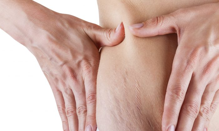 Stretch marks happen most frequently during adolescent or pregnancy growth. (Artem Furman/iStock)