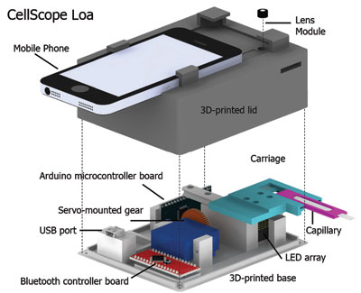 The device includes a 3D-printed case housing simple optics, circuitry and controllers to help process the sample of blood. ( Mike D'Ambrosio and Matt Bakalar, Fletcher Lab, UC Berkeley)