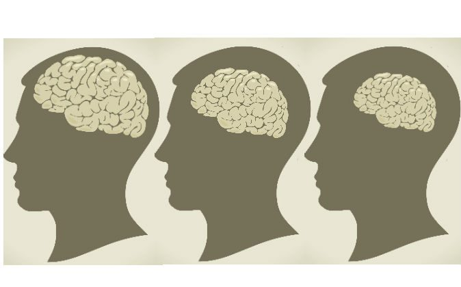 Your brain may be shrinking you may be losing as much as 0.4 percent every year. (Vladgrin/iStock; edited by Epoch Times)