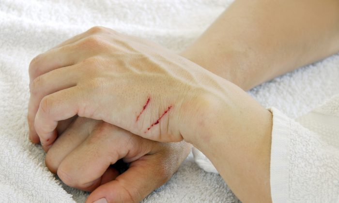 Scratched arms (simplytheyu/iStock)