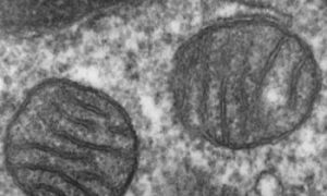 Mitochondria May Play Role in Male Infertility, Study Finds