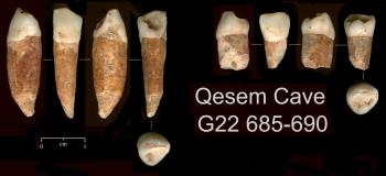 OLDEST HUMAN TEETH FOUND: Archaeologists found evidence that humans lived in Israel 400,000 years ago, including these teeth, some of which are dated from 300,000 to 400,000 years ago. ( Avi Gopher/Tel Aviv University)