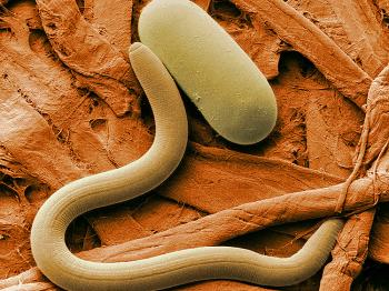 ROUNDWORM: Photo of a Soybean cyst nematode and its egg, magnified 1,000X. A yellow dye used in staining misfolded proteins associated to Alzheimer's disease can boost the lifespan of roundworms by 78 percent. (Agricultural Research Service)