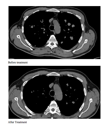 CT scans before and after treatment show that cancer has shrunk and there are no new growths.