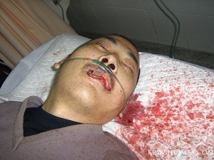 December 3, 2006, after petitioner Duan Huiming from Shanghai was beaten up by authorities. (The Epoch Times)